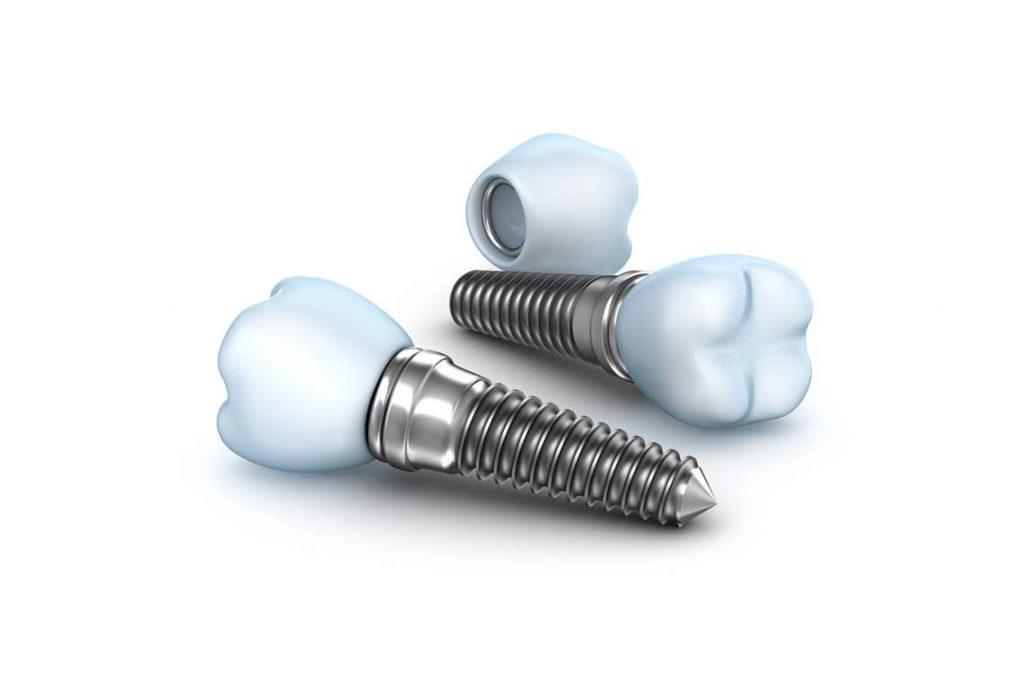 Dental Implants in Etobicoke ON