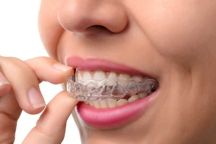 Invisalign in Etobicoke ON