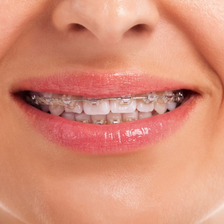 Dental Braces in Etobicoke, ON