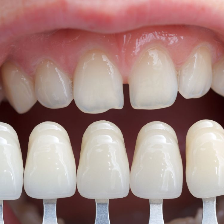 Dental Veneers in Etobicoke, ON