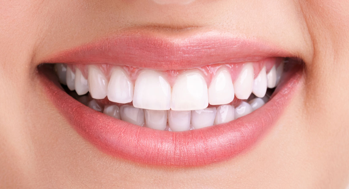 Teeth Whitening in Etobicoke ON