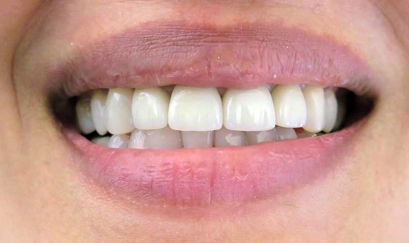 Smile Gallery Dental Crowns Lakeshore Smiles Dentistry